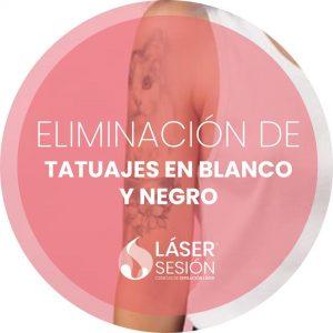Tratamiento de eliminación de tatuajes en blanco y negro