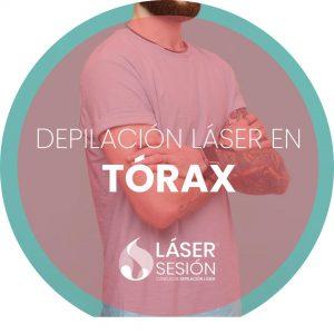 Depilación láser en tórax