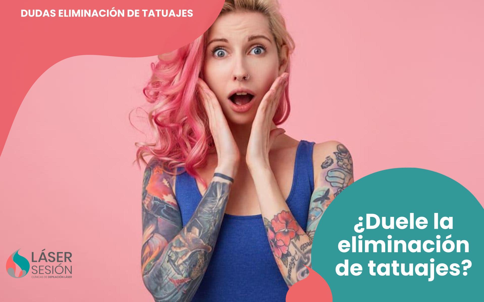 ¿Duele la eliminación de tatuajes?