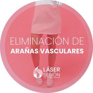 Tratamiento de eliminación de arañas vasculares