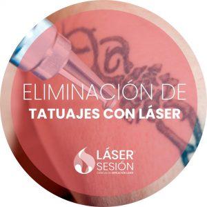Tratamiento de eliminación de tatuajes con láser