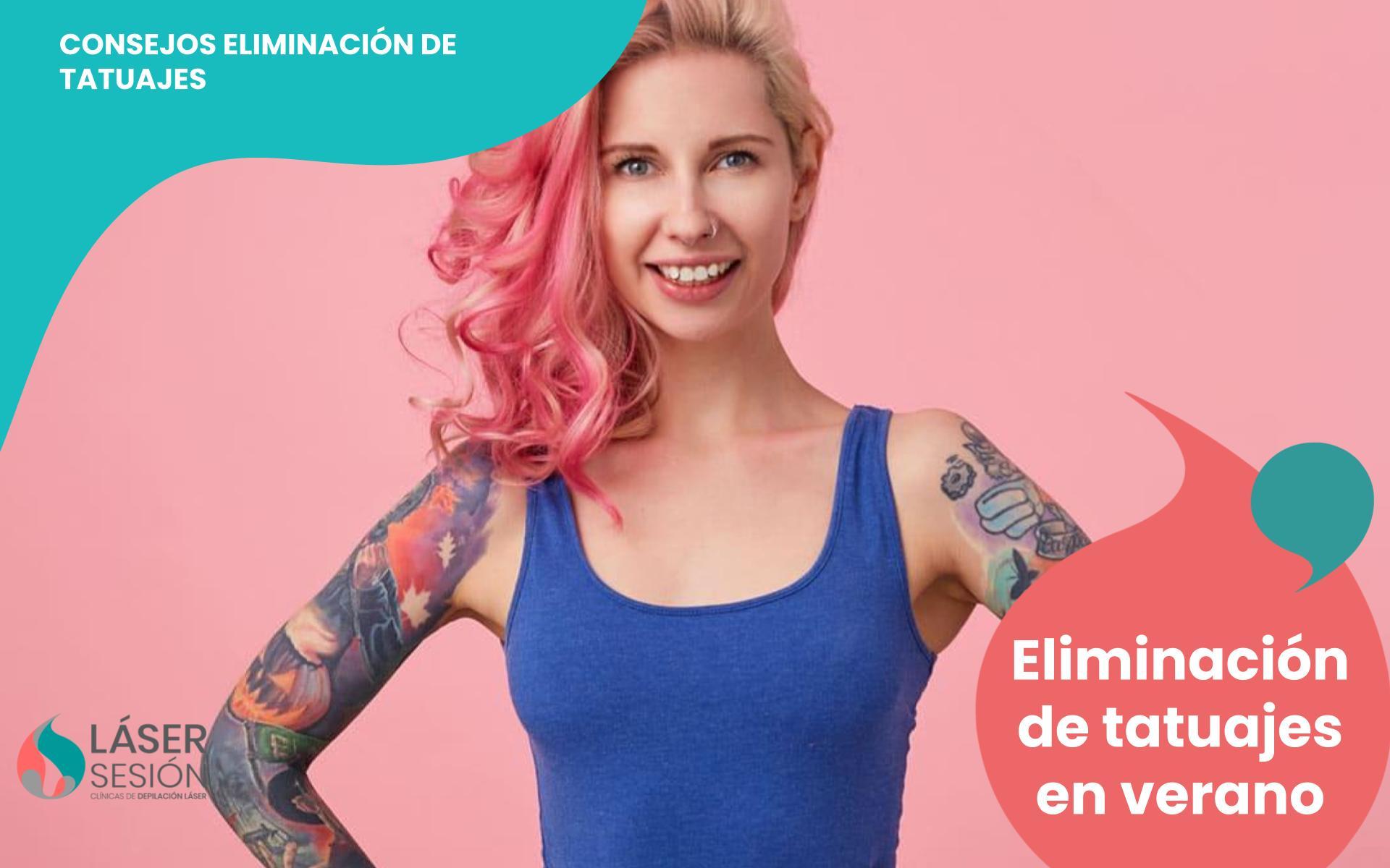 Eliminación de tatuajes en verano