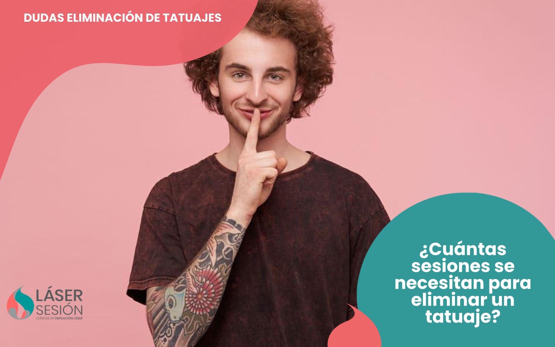 Cuántas sesiones se necesitan para eliminar un tatuaje