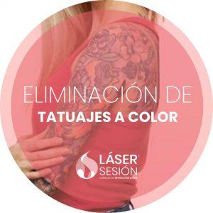 Tratamiento de eliminación de tatuajes a color