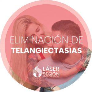 Tratamiento de eliminación de telangiectasias