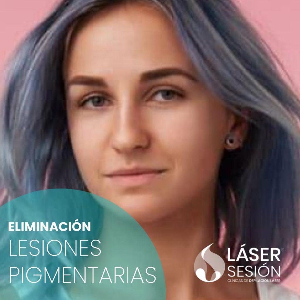 Tratamiento de eliminación de lesiones pigmentarias