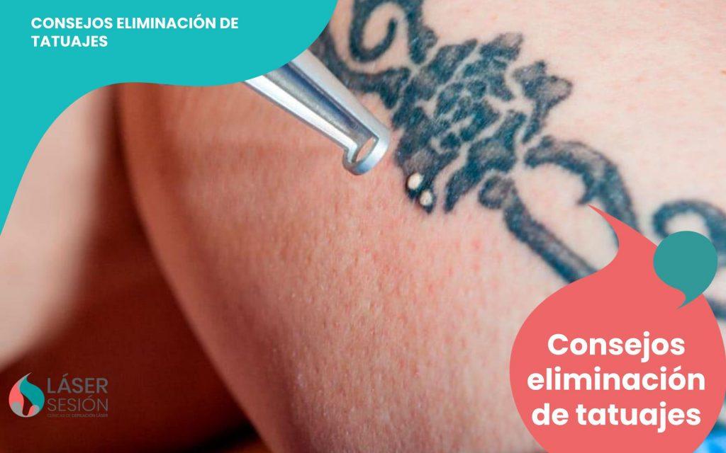 Consejos eliminación de tatuajes