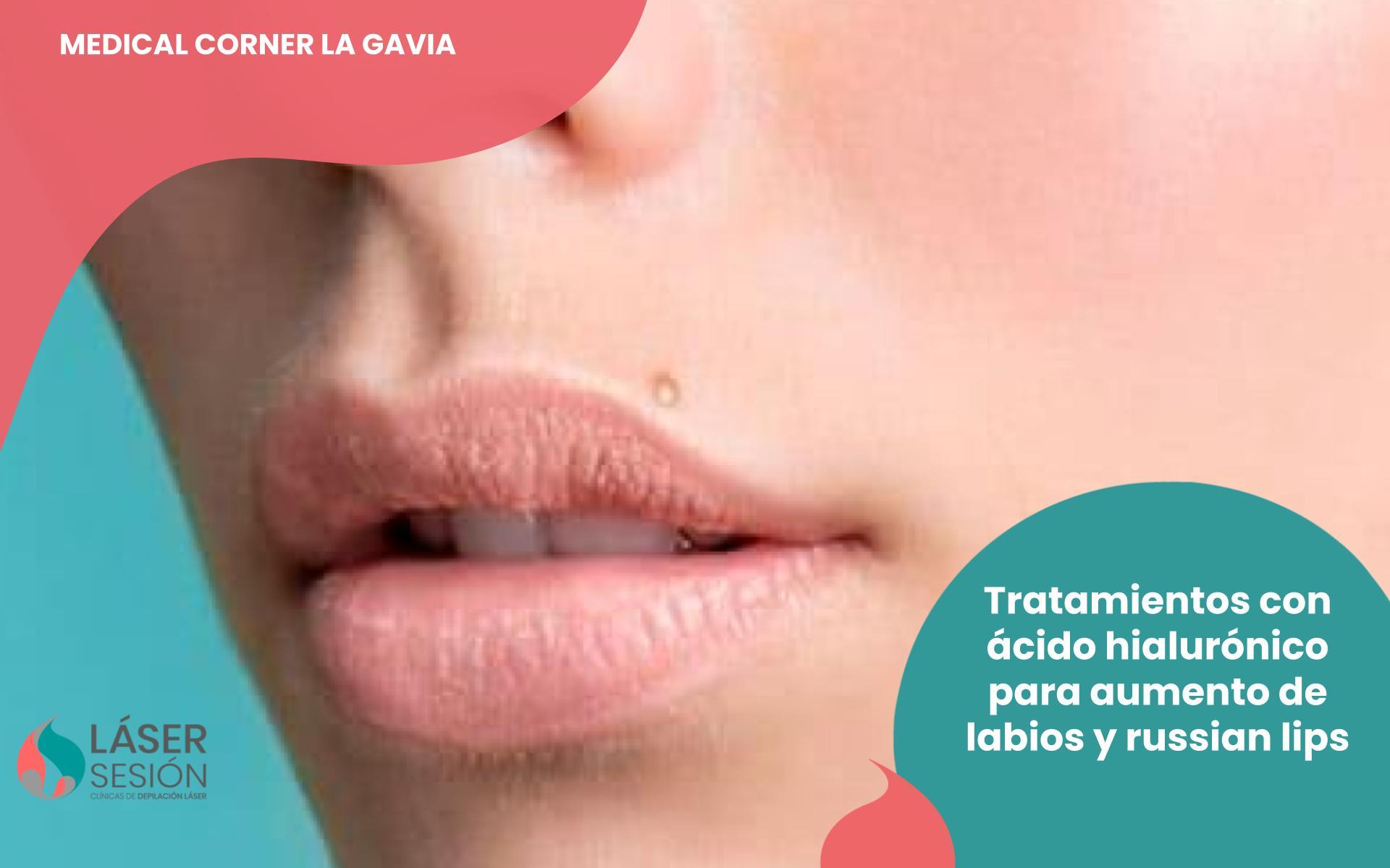 Aumentos de labios con ácido hialurónico y russian lips
