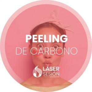 Tratamiento de peeling de carbono